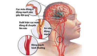 Cục máu đông trên não