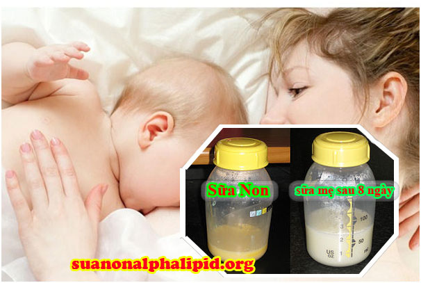 Sữa non là loại sữa đầu tiên tiết ra trong 3 – 5 ngày đầu sau khi sinh con