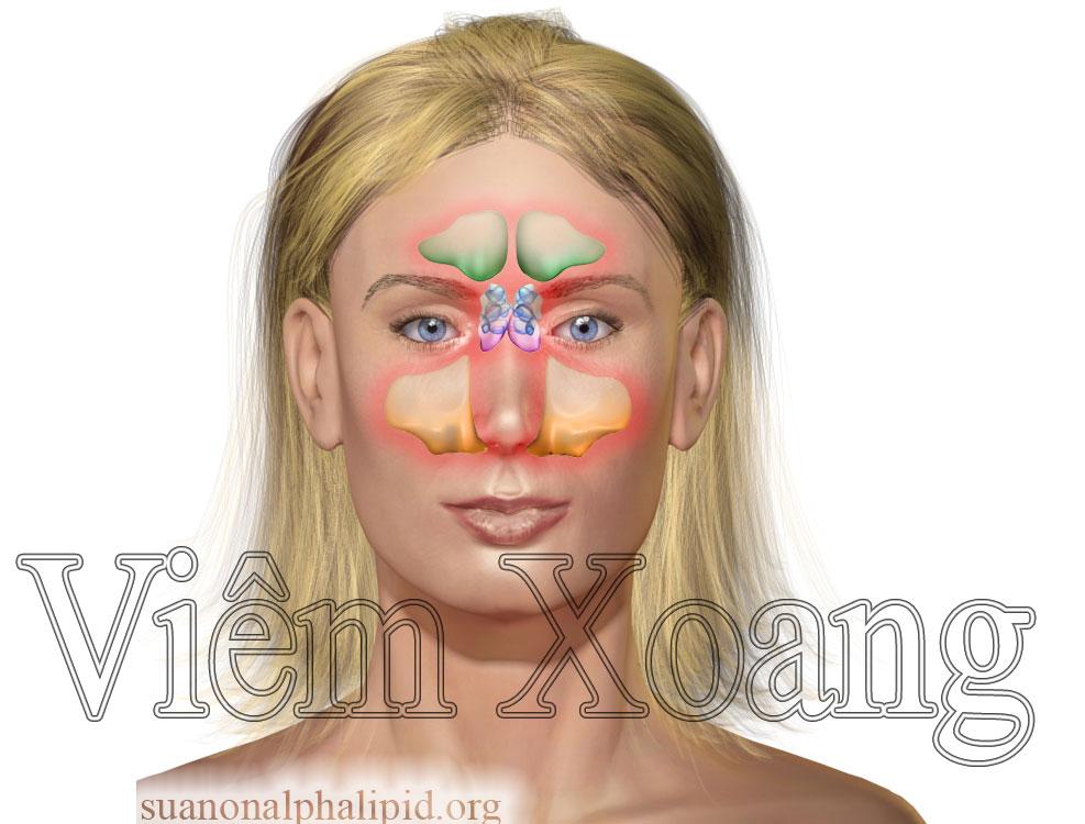 suan-non-alpha-lipid-ho-tro-dieu-tri-benh-viem-xoang-1