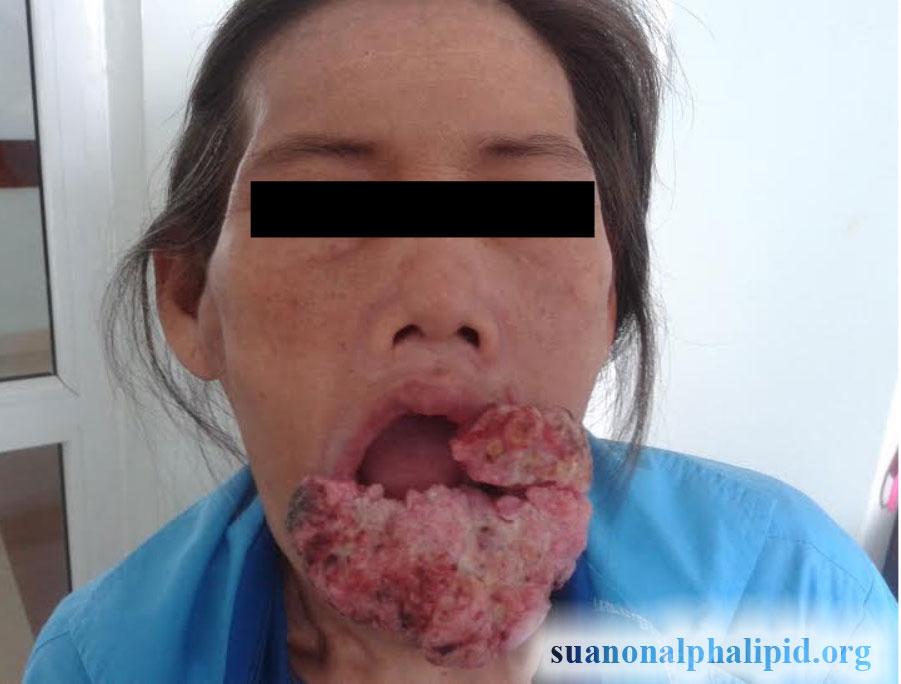 sua-non-alpha-lipid-rat-tot-cho-nguoi-ung-thu-1