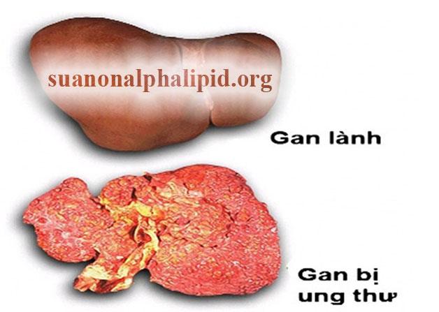 sua-non-alpha-lipid-rat-tot-cho-nguoi-ung-thu-2